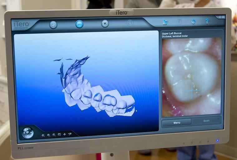 右侧是摄像头采集的口腔视频,左侧是正在生成中的三维牙齿模型。